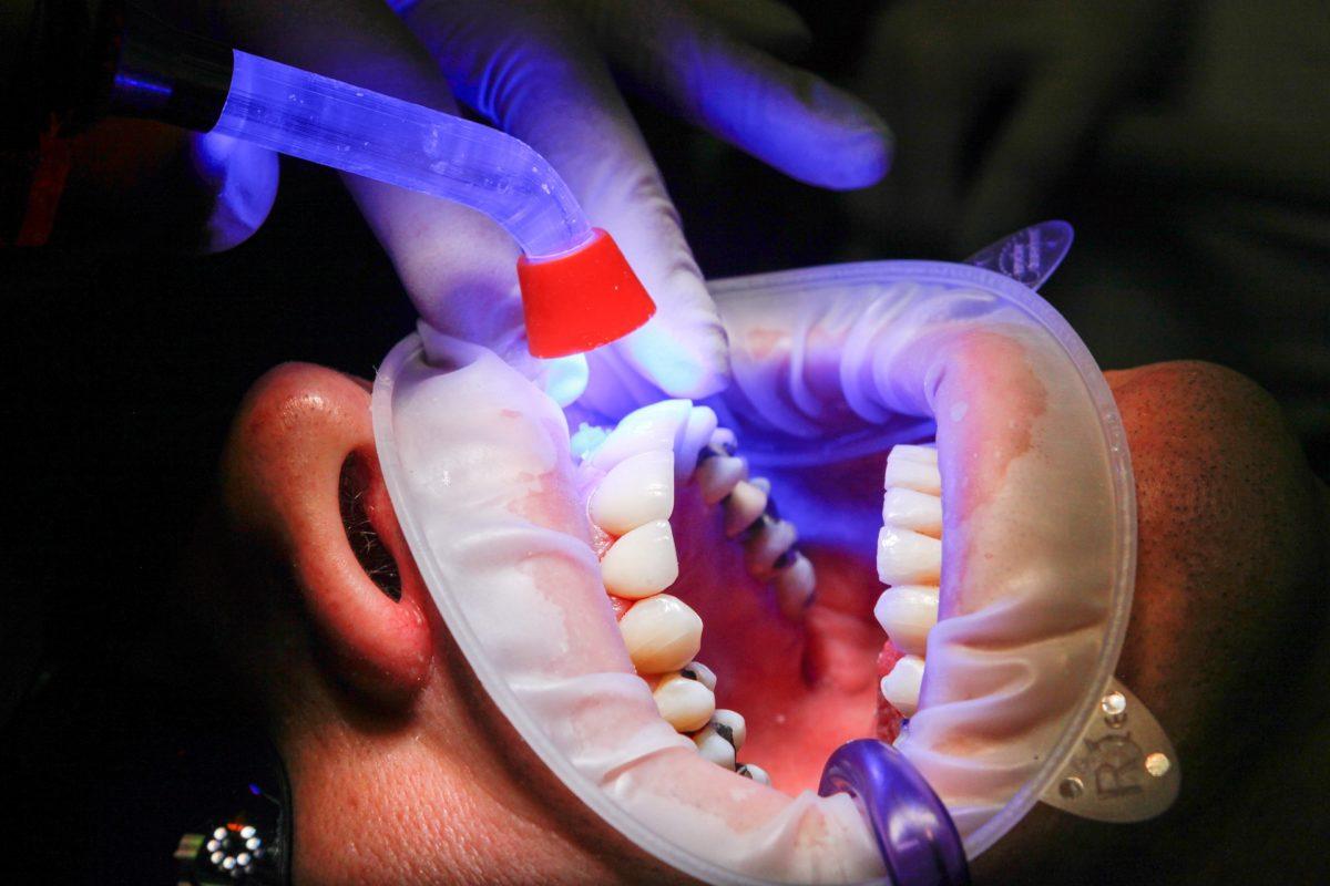 Zła metoda żywienia się to większe niedobory w jamie ustnej oraz także ich utratę